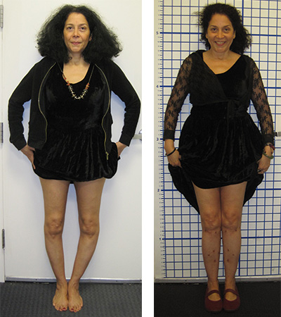bowlegged_before_and_after