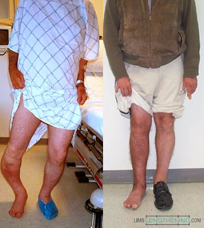 limb malalignment, limb deformity, limb length discrepancy
