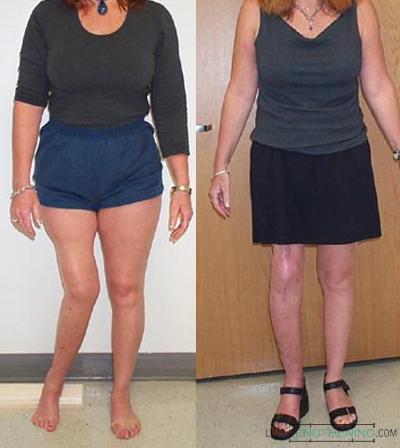 tibia deformity, limb lengthening, limb deformity