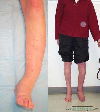 tibia non-union, limb deformity, leg deformity