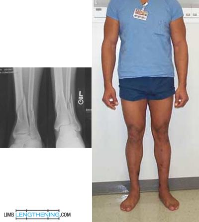 tibia lengthening, limb malalignment, limb deformity