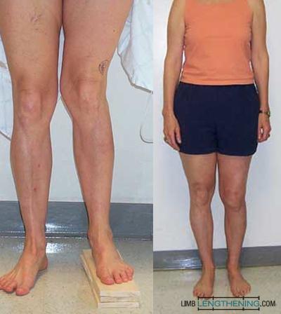 limb malalignment, knock knee, limb deformity