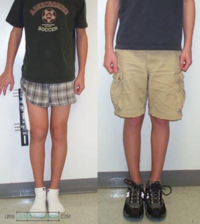 femur lengthening, leg lengthening, limb deformity