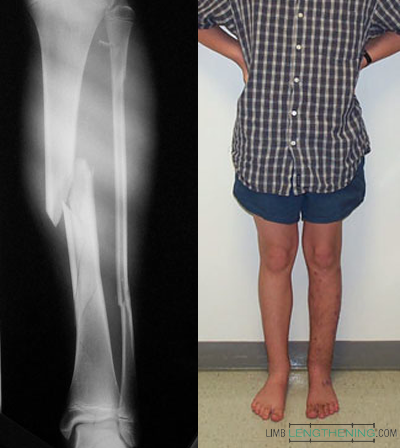 tibia fracture, limb lengthening, limb deformity