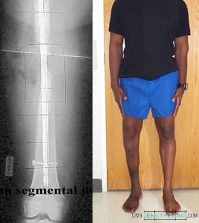 bone transport, limb length discrepancy, limb deformity