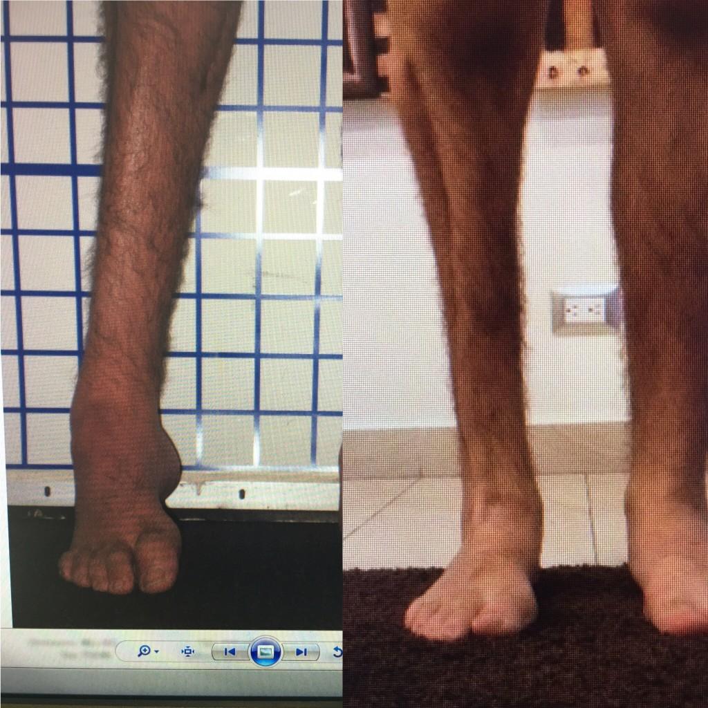 ankle reconstruction, limb lengthening, limb deformity